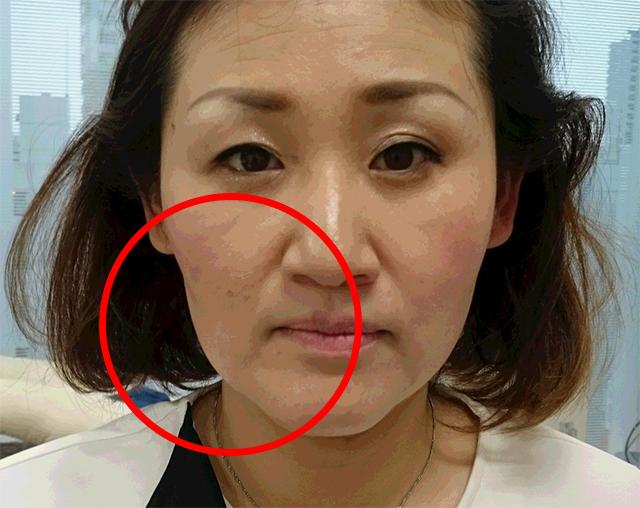 講師をモデルとし、半顔を施術